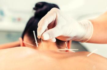 L'acupuncture: une méthode de traitement ancestrale