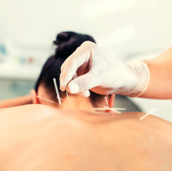 Acupuncture: an ancient healing method